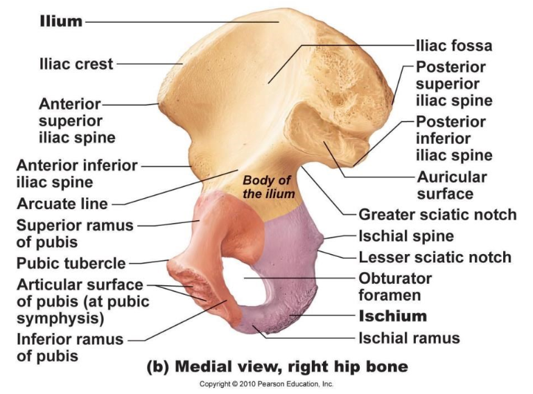ImageQuiz: Hip bone (medial view)