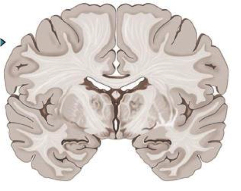 Imagequiz coronal section of the brain ccuart Image collections